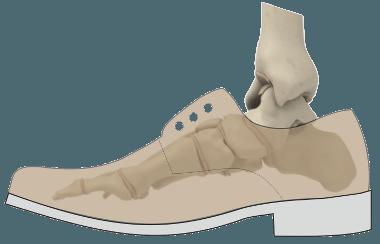 Standard Schuh